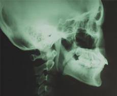 側貌頭部X線規格写真